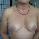 Brustwarzen nach der Mikropigmentierung
