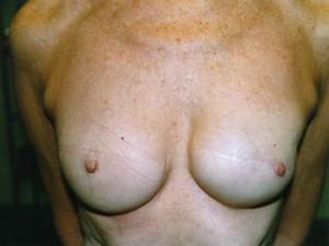 Brustwarzenrekonstruktion Beispiel 1