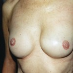 Brustwarzenrekonstruktion Beispiel 2