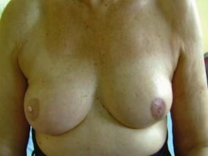 Brustwarzenrekonstruktion Beispiel 3 danach 2