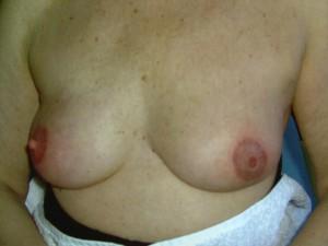 Brustwarzenrekonstruktion Beispiel 3 danach
