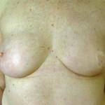 Brustwarzenrekonstruktion Beispiel 3 vorher