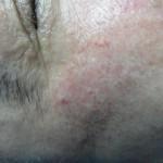 Haut danach
