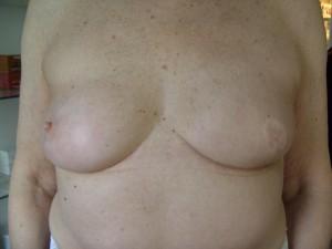 Li. Brust OP 1