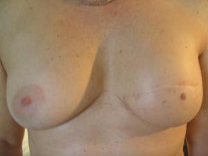 Li. Brust OP 2
