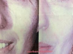 Ultraschallbehandlung vorher und danach
