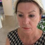 """Faltenunterspritzung nach der Behandlung mit """"Restylane"""""""